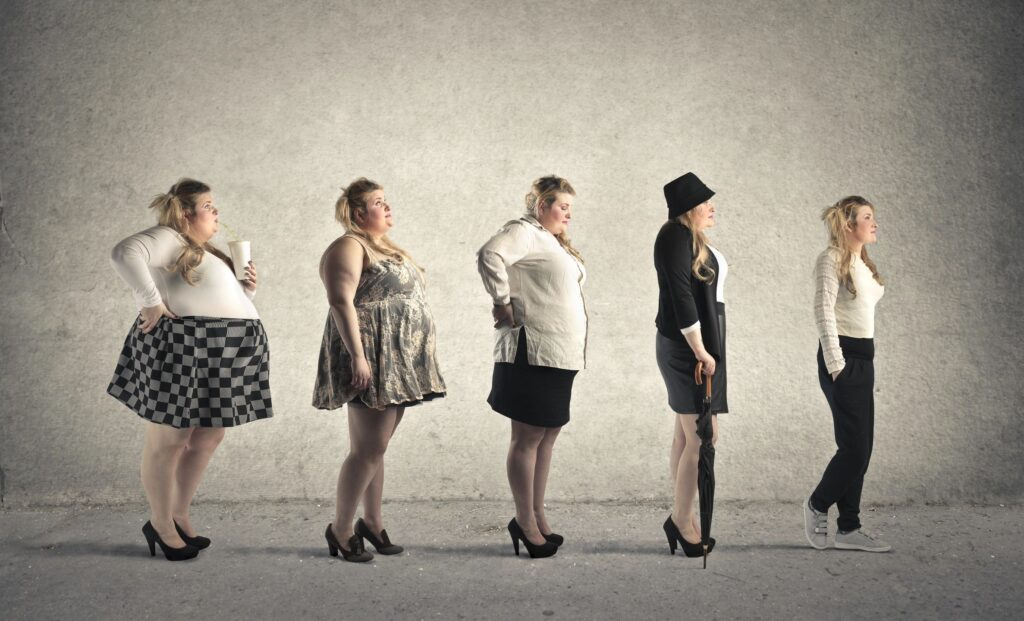 does stress cause weight gain?